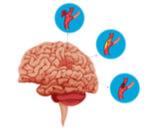 تمدد الأوعية الدموية في الدماغ