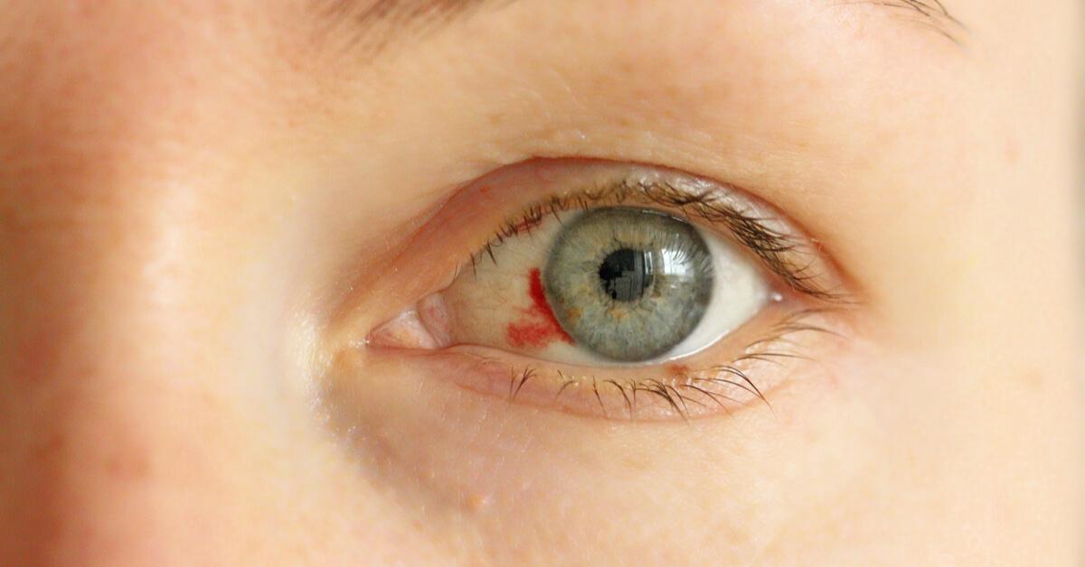 هل نزيف العين خطير وما أسبابه ويب طب