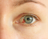 هل نزيف العين خطير