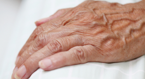 أسباب انتفاخ عروق اليد تعرف عليها ويب طب