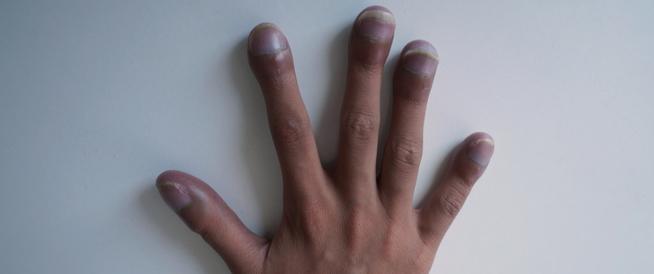 أسباب ازرقاق الأظافر وكيفية العلاج