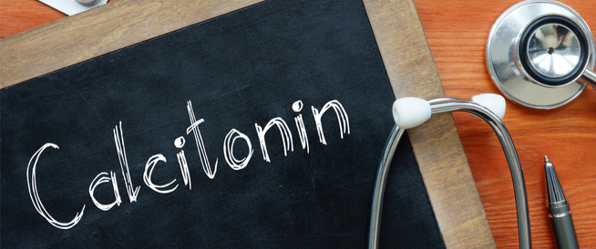 زيادة إفراز هرمون الكالسيتونين