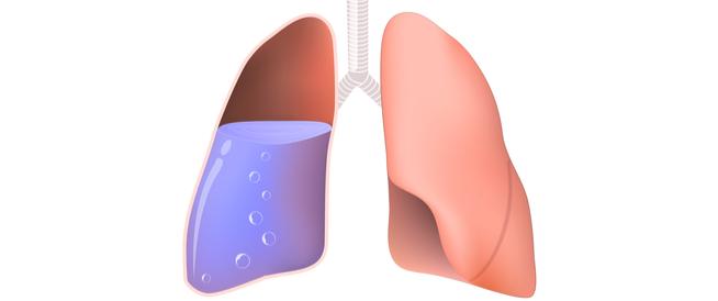 ماء الرئة والسرطان: هل يوجد علاقة بينهما