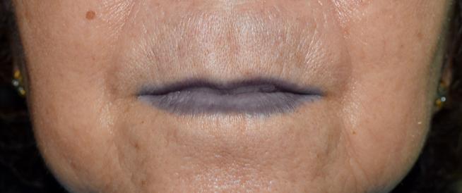أسباب تغير لون الشفايف وطرق العلاج