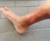 أكزيما الدوالي: حالة جلدية غريبة
