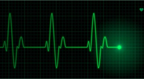 معدل نبضات القلب و العوامل