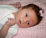 علاج أكزيما الرضع
