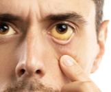 هل مرض اليرقان خطير