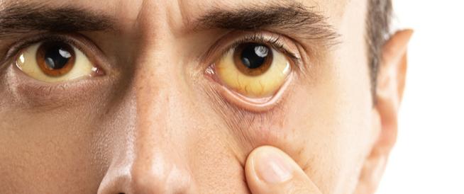 هل مرض اليرقان خطير؟
