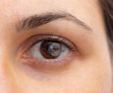 نقطة سوداء في بؤبؤ العين