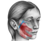 علاج تشنج الوجه النصفي