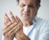 التهاب مفاصل الأصابع