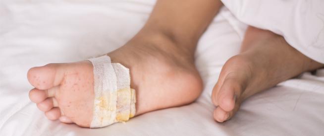 قرحة القدم السكرية: إحدى مضاعفات مرض السكري
