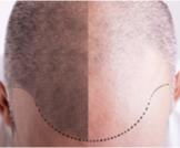 أنواع زراعة الشعر: تعرف عليها