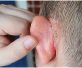 أكزيما الأذن
