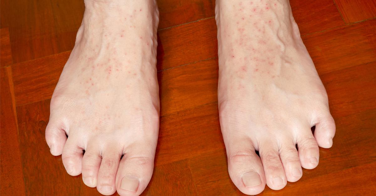 تعرف على علاج أكزيما القدمين ويب طب