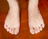 علاج أكزيما القدمين