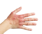 حساسية اليدين واحمرارها