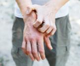 هل الأكزيما معدية؟ وما أبرز أسبابها؟