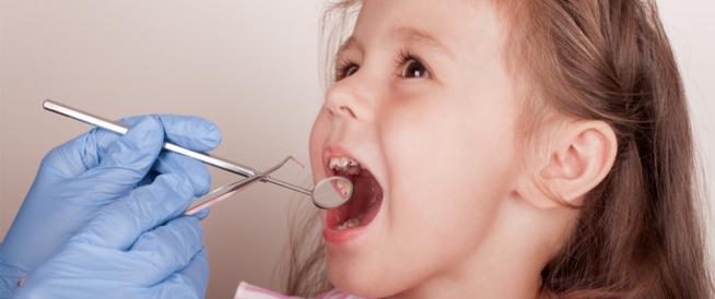 التهاب اللثة عند الأطفال