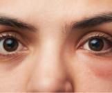 التهاب العين البكتيري