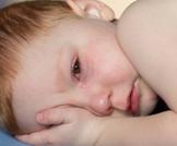 احمرار جفن العين عند الأطفال الرضع