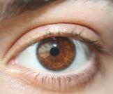 صغر بؤبؤ العين: أسباب وعلاجات