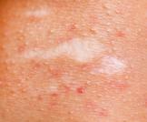 علاج تهيج الجلد بعد الليزر