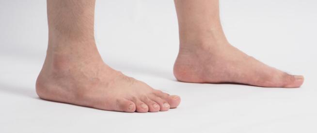 أضرار القدم المسطحة (الفلات فوت)