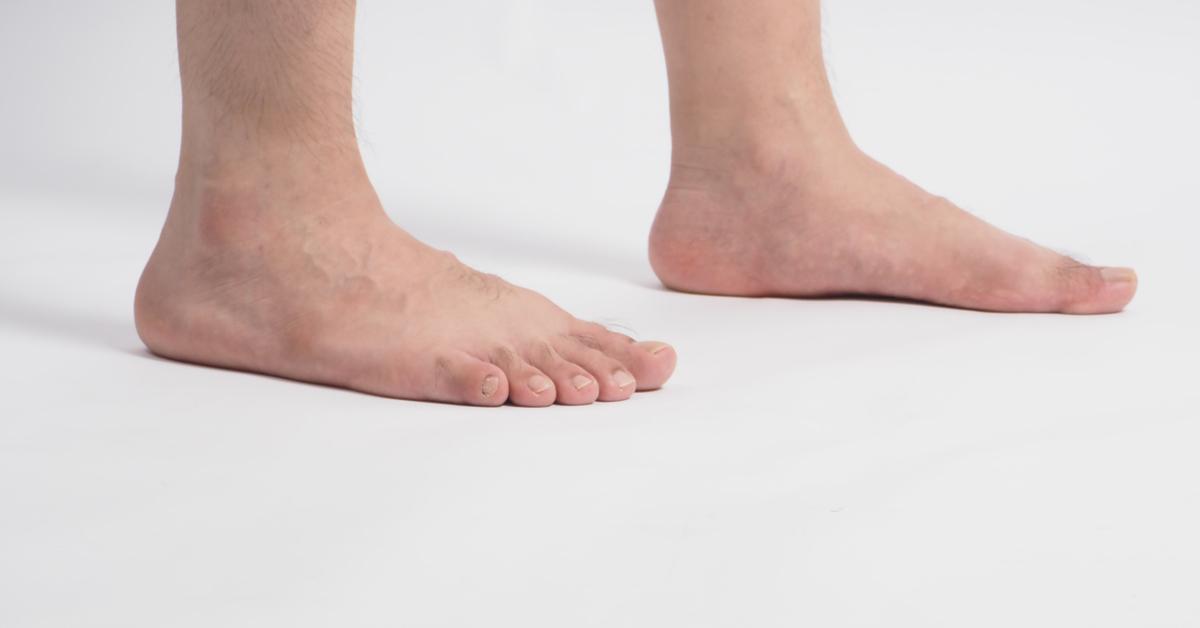 أضرار القدم المسطحة الفلات فوت ويب طب