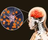 مضاعفات التهاب السحايا