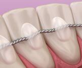 مثبت الأسنان بعد التقويم