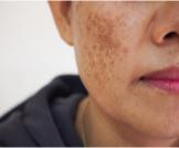 البقع الداكنة: أسباب ظهورها وطرق علاجها