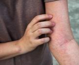 علاج منزلي للطفح الجلدي
