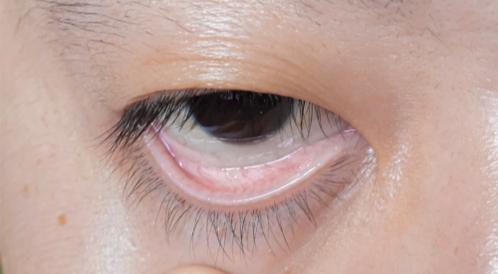 هل فقر الدم يسبب اصفرار العين ويب طب