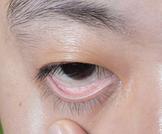 هل فقر الدم يسبب اصفرار العين؟