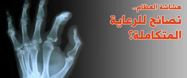 هشاشة العظام، الرعاية المتكاملة