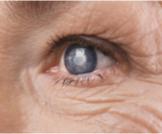 ما خطورة المياه البيضاء على العين؟