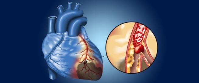 خطورة انسداد شرايين القلب