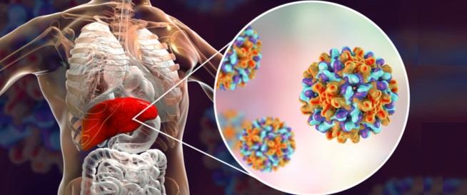 أنواع التهاب الكبد: تعرف عليها