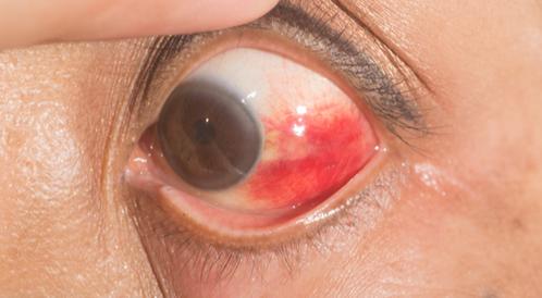 دم في العين
