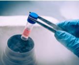التبرع بالخلايا الجذعية