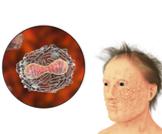 هل مرض الجدري خطير؟