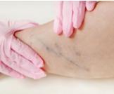 فترة علاج جلطة الساق