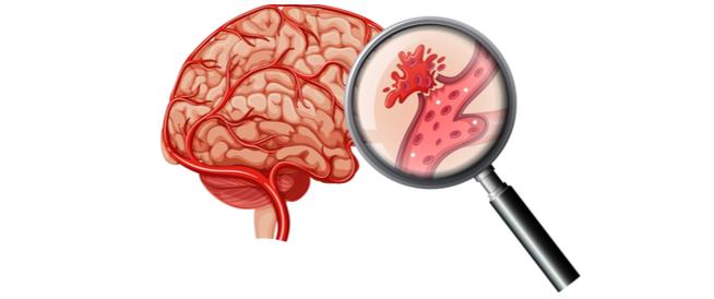 أنواع السكتة الدماغية النزفية وأعراضها