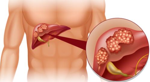 أسباب سرطان الكبد النّقيلي ومراحل تطوره