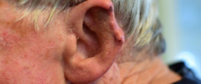 أعراض سرطان الأذن وأبرز المعلومات عنه