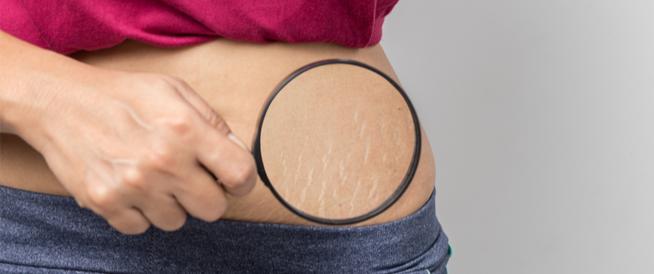 علاج تشققات البطن