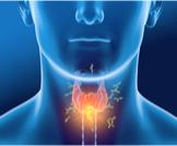 علاج التهاب الغدة الدرقية المناعي