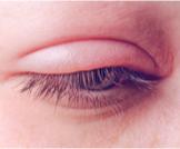 علاج فطريات جفن العين